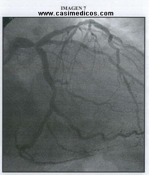Preguntas Cardiologia Mir 2012 2 Febrero 2013 Casimedicos Estudiantes Medicina Medicos Examen Mir
