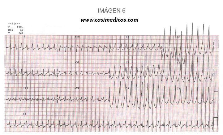 Respuestas Cardiología y cirugía Cardiovascular examen MIR 2017