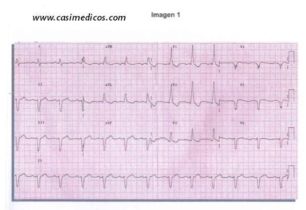 Respuestas Cardiología y cirugía Cardiovascular examen MIR 2018
