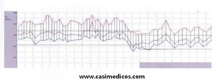 Presión arterial constante de 150/100
