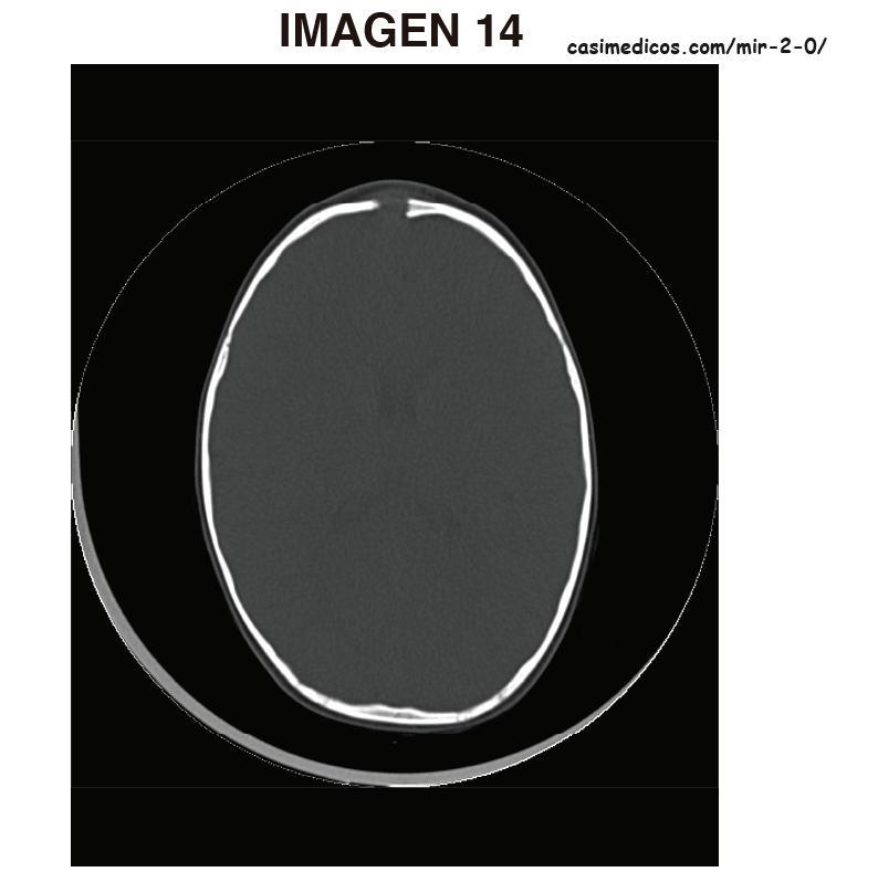 imagen14-MIR2021